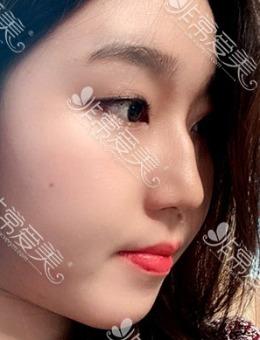 韩国优雅人整形驼峰鼻矫正手术+面吸2个月恢复案例
