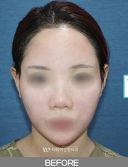 韩国Theway整形医院脂肪填充前后对比案例_术前