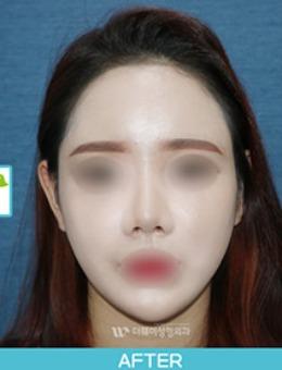 韩国Theway整形医院脂肪填充前后对比案例_术后