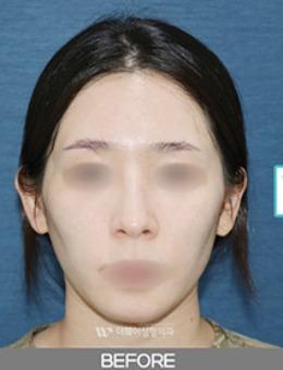 韩国TheWAY整形医院全脸脂肪填充一个月恢复照_术前