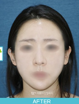 韩国TheWAY整形医院全脸脂肪填充一个月恢复照_术后