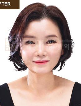 韩国她美整形医院全脸面部年轻化整形手术_术后
