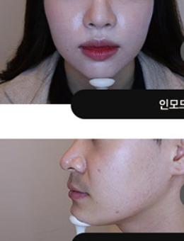 韩国吴佳娜皮肤科INMODE治疗3次后效果_术前