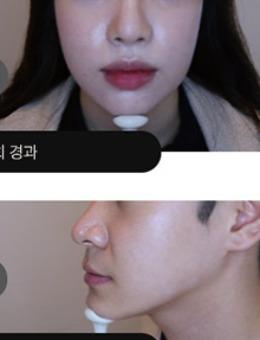 韩国吴佳娜皮肤科INMODE治疗3次后效果_术后