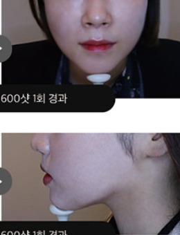 韩国吴佳娜皮肤科超声提升_术后