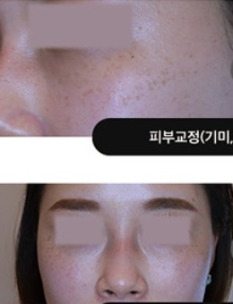 韩国吴佳娜皮肤科面部色斑皮肤管理_术前