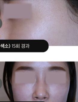 韩国吴佳娜皮肤科面部色斑皮肤管理_术后