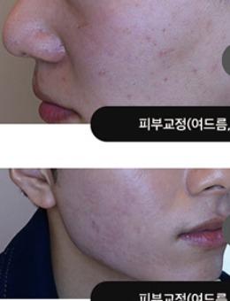 韩国吴佳娜皮肤科去痘印+毛孔粗大治疗案例_术前