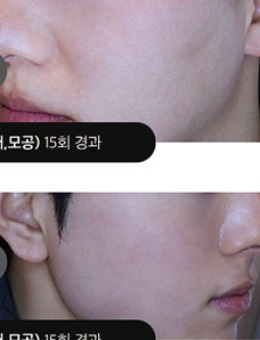 韩国吴佳娜皮肤科去痘印+毛孔粗大治疗案例_术后