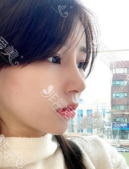 -韩国优雅人整形医院肋骨鼻修复前后对比照片