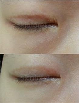 韩国思亲肤乐皮肤科双眼皮疤痕肉条修复前后对比