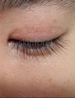 韩国思亲肤乐皮肤科双眼皮疤痕去除照片