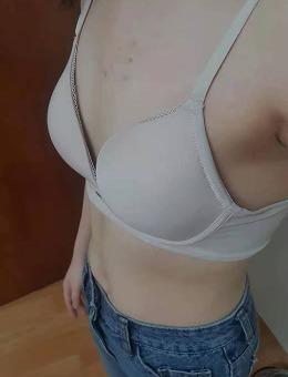 格瑞丝噢爱美整形外科隆胸手术前后对比照片_术前