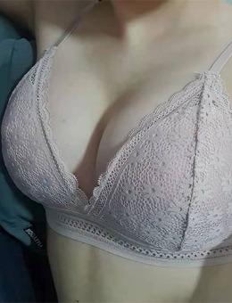 格瑞丝噢爱美整形外科隆胸手术前后对比照片_术后