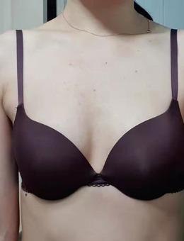 韩国格瑞丝噢爱美医院隆胸分享:罩杯UP!_术前
