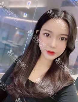 -韩国格瑞丝噢爱美整形外科双眼皮隆鼻+面吸,手术案例分享!