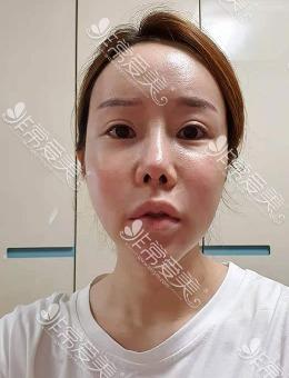 -格瑞丝噢爱美整形眼修复+鼻修复+隆胸案例分享