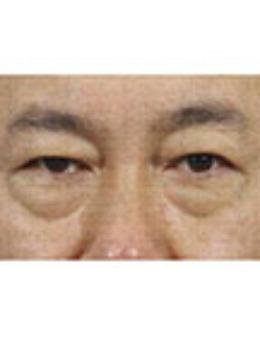 韩国真实整形外科男士去眼袋手术前后对比_术前