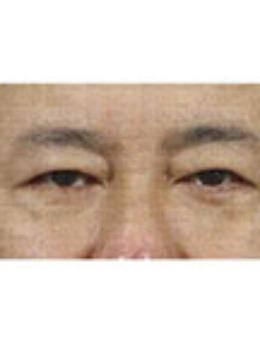 韩国真实整形外科男士去眼袋手术前后对比_术后
