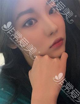 """韩国歌柔飞3D打印鼻整形""""绝美""""案例一饱眼福!_术后"""