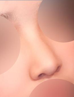韩国Yellow整形外科隆鼻前后对比照_术前