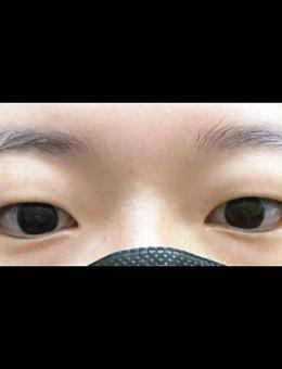 韩国icon整形双眼皮+去眼内脂肪图片_术前