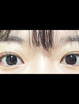 韩国icon整形双眼皮+去眼内脂肪图片_术后