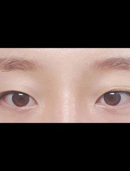 韩国icon可爱风眼综合整形手术案例_术前