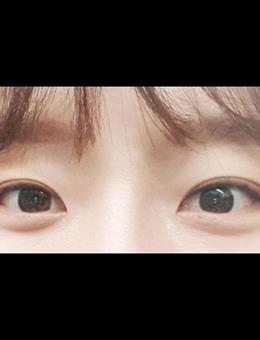 韩国icon可爱风眼综合整形手术案例_术后