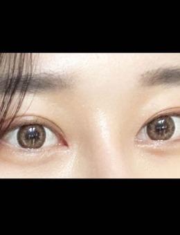 韩国icon整形医院双眼皮+开眼角对比图_术后