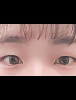韩国icon整形做双眼皮手术前后对比图_术前