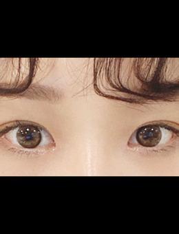 韩国icon整形做双眼皮手术前后对比图_术后