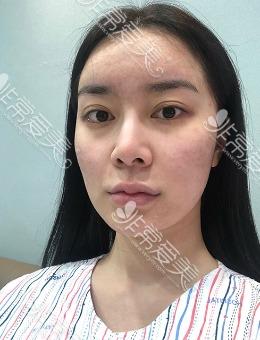 韩国1%整形眼鼻轮廓手术前后对比图_术前