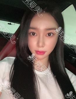 韩国1%整形眼鼻轮廓手术前后对比图_术后