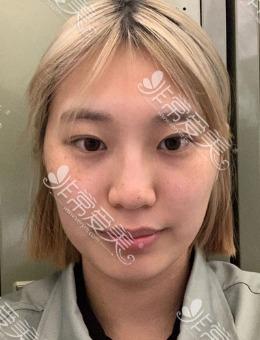 韩国1%整形high-3d颧骨手术案例对比图_术前
