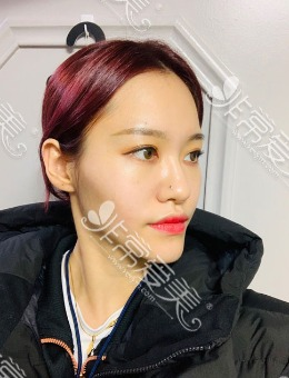 韩国1%整形网红轮廓三件套+脂肪填充全脸恢复日记_术前