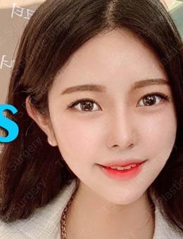 韩国TS整形隆鼻+轮廓手术高清案例打包分享!