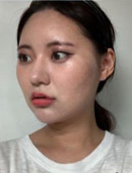 韩国dr朵整形面部轮廓手术前后对比案例