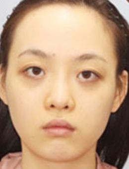 韩国dr朵吸脂+脂肪填充手术前后对比图