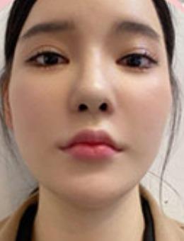 韩国dr朵轮廓整形+隆鼻前后对比案例