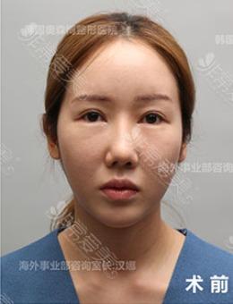 韩国奥森博鼻修复+超声刀提升前后对比案例