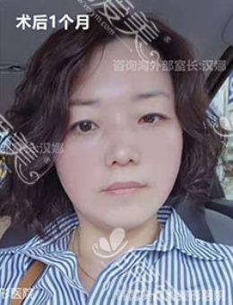 韩国奥森博面部拉皮手术+去眼袋前后对比图