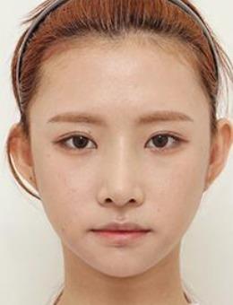 韩国note整形颧骨缩小+下颌角+鼻整形案例