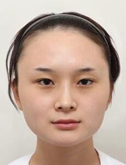 韩国note轮廓整形+双下巴吸脂手术对比照片