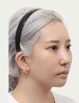 韩国note下颌角+下巴整形+鼻修复案例