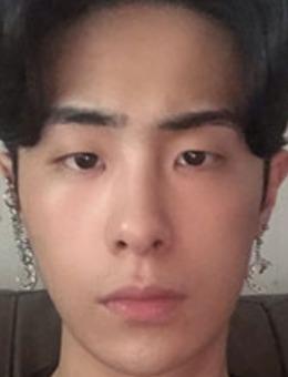 韩国dr朵男士眼鼻整形前后对比案例_术前