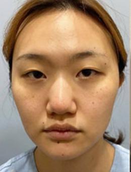 韩国dr朵鼻整形前后对比照片真人分享_术前