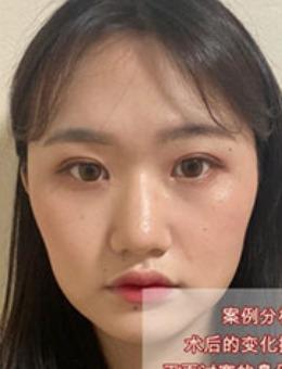 韩国dr朵鼻整形前后对比照片真人分享_术后