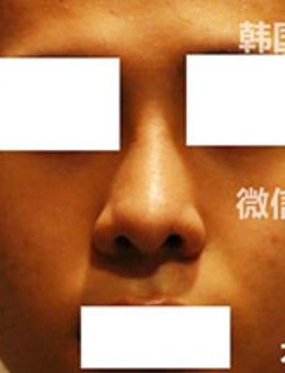韩国奥森博男士隆鼻前后对比照片_术前