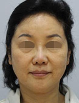 韩国zell整形SMAS拉皮手术前后对比图_术前